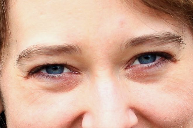 Почему мешки под глазами у женщин постоянно или появляются после сна – причины и о чем говорят темные, синие, красные мешки