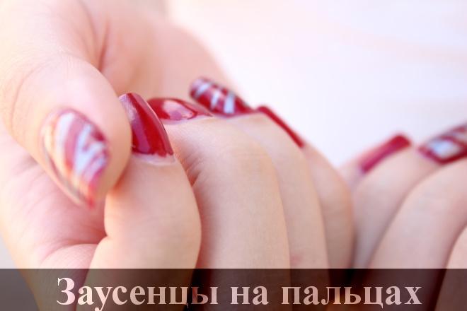 Крем от заусенцев на пальцах