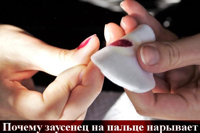 Нарывает заусенец на пальце руки что делать как лечить