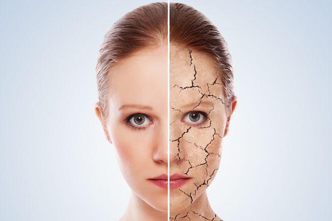 Провисание кожи на лице