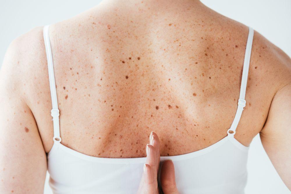 Пигментные пятна на лице: причины появления у женщин