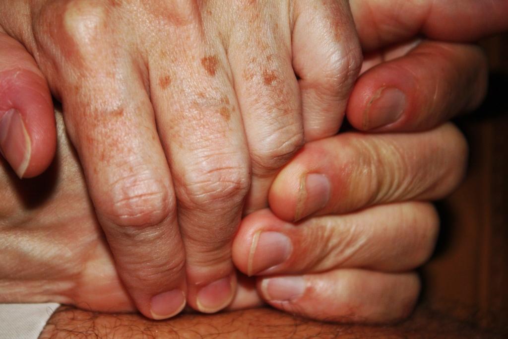 Как избавиться от старческих пигментных пятен